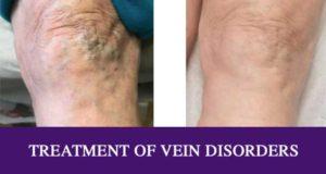 treatment of vein